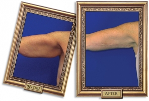 brachioplasty-01-framed-600px.jpg