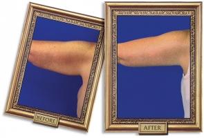 brachioplasty-03-framed-600px.jpg