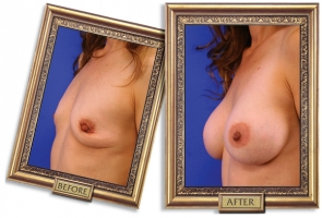 breast-enlargement-02b-framed_1.jpg