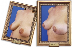 breast-lift-03b-framed-600px.jpg
