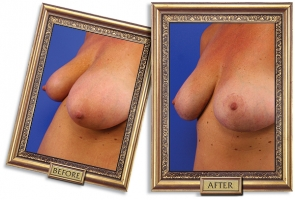 breast-lift-04b-framed-600px.jpg