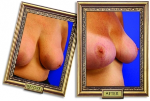 breast-lift-01-framed.jpg