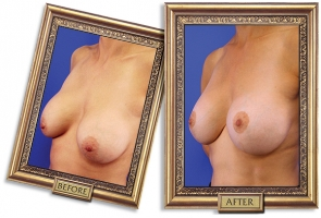 breast-lift-aug-02b-framed-600px.jpg