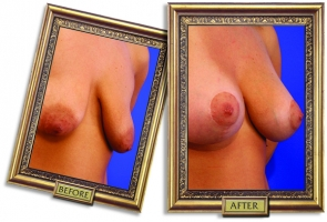 breast-lift-aug-03-framed.jpg