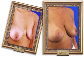 breast-lift-aug-06-framed.jpg