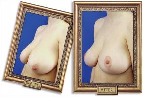 breast-reduction-02b-framed-600px.jpg