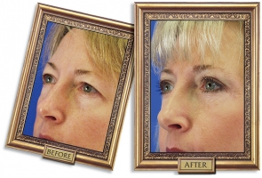 eyelid-03b-framed-600px.jpg
