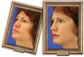 facelift-03b-framed-600px.jpg
