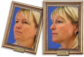 facelift-04b-framed-600px.jpg