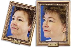 facelift-05b-framed-600px.jpg