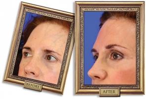 forehead-02b-framed-600px.jpg