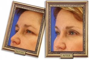 forehead-05b-framed-600px.jpg