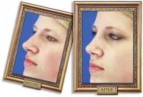 nose-surgery-05b-framed-600px.jpg