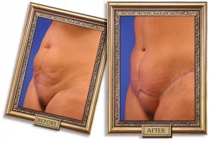 tummy-tuck-01b-framed-600px.jpg