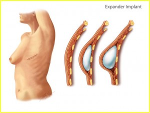 Expander Implant