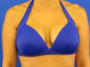 Dr. Bashioum's breast enlargement photos