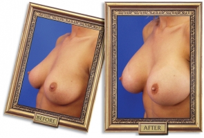 breast-enlargement-01b-framed_1.jpg