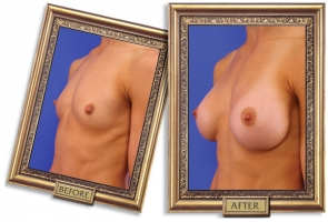 breast-enlargement-03b-framed_1.jpg