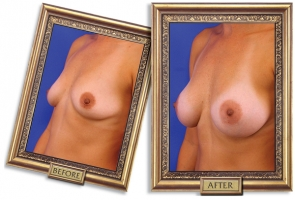 breast-enlargement-04b-framed_1.jpg