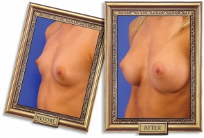 breast-enlargement-05b-framed_1.jpg