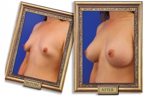 breast-enlargement-06b-framed.jpg
