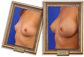 breast-enlargement-07b-framed_1.jpg