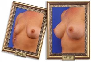 breast-enlargement-08b-framed_1.jpg