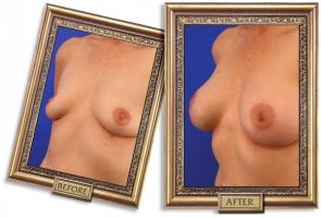 breast-enlargement-09b-framed_1.jpg