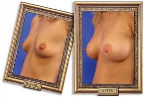 breast-enlargement-10b-framed_1.jpg