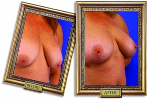 breast-lift-02-framed.jpg