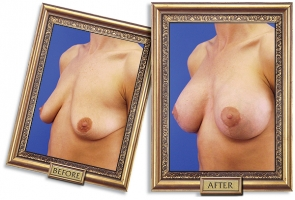 breast-lift-aug-04b-framed-600px.jpg