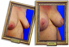 breast-lift-aug-05-framed.jpg