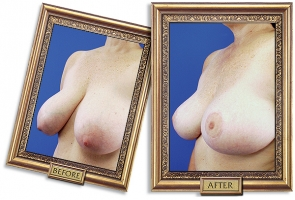 breast-reduction-01b-framed-600px.jpg