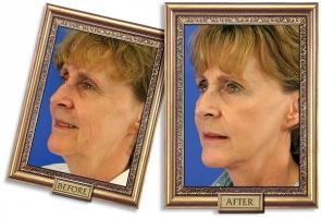 facelift-02b-framed-600px.jpg