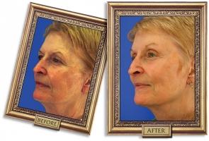 facelift-06b-framed-600px_0.jpg