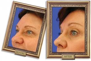 forehead-04b-framed-600px_0.jpg