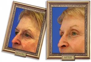 forehead-03b-framed-600-px.jpg