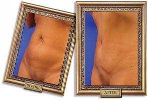 tummy-tuck-02b-framed-600px.jpg