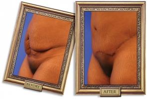 tummy-tuck-04b-framed-600px.jpg