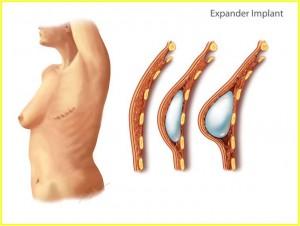 Expander Implant