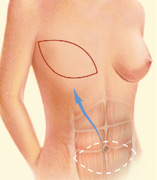 Tram flap breast reconstruction.