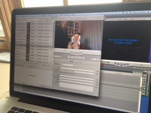 Facelift diary video editing